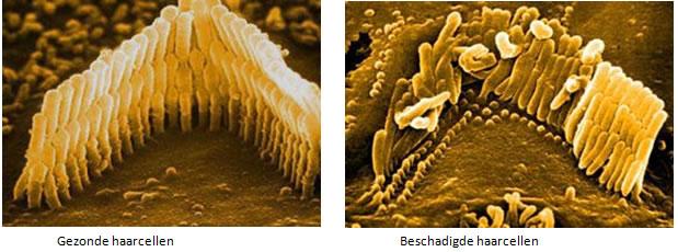 gehoorbeschadiging-beschadigde-haarcellen